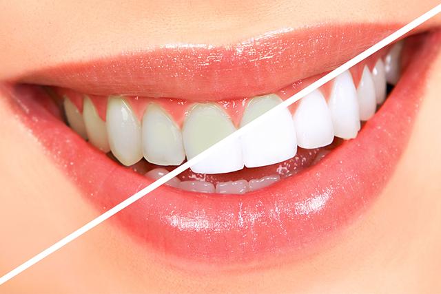 Izbeljivanje zuba