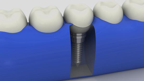 Implantološka terapija